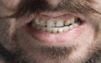 Bruxism – How You Get It and How To Prevent It
