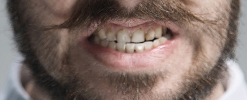 Guy clenching teeth with bad teeth because he is stressed