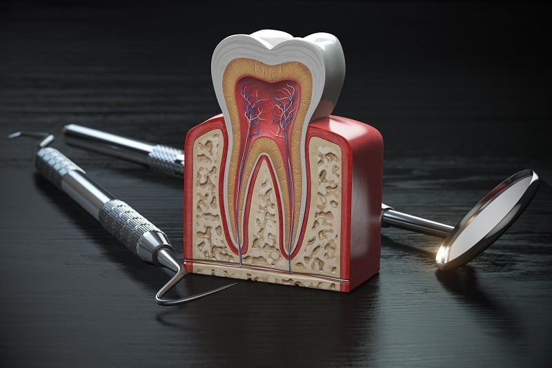Tooth model cross section with dental tools on black wooden table. Close up. Dental treatmant and hygiene concept. 3d illustration