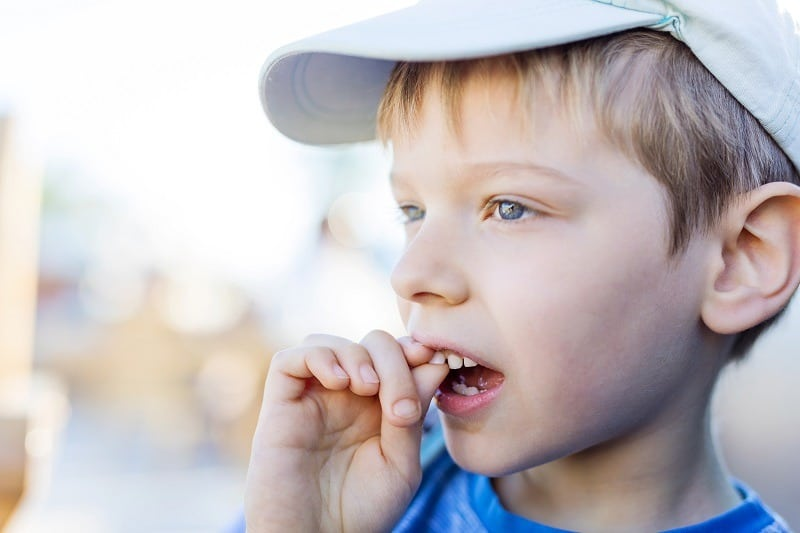 Closeup of boy shaking his wobbly milk tooth with his fingers. Upper front tooth. Health care and dental hygiene concept.