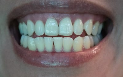 Can COVID-19 Damage Teeth?