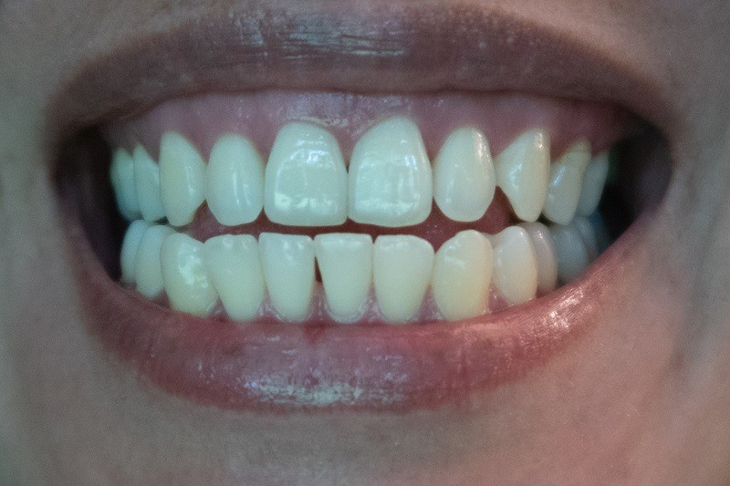Stroud-Dental-can-COVID-19-damage-teeth?
